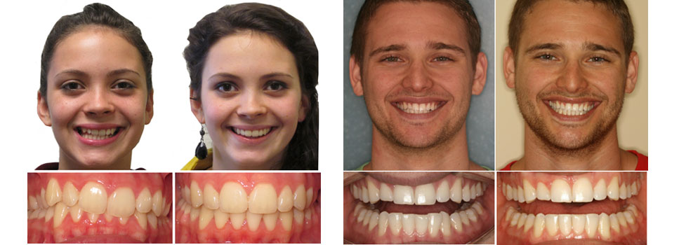 Fotos del antes y despues de Invisalign