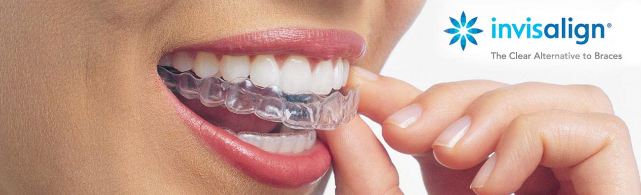 Clínica dental proveedora de ortodoncia invisalign