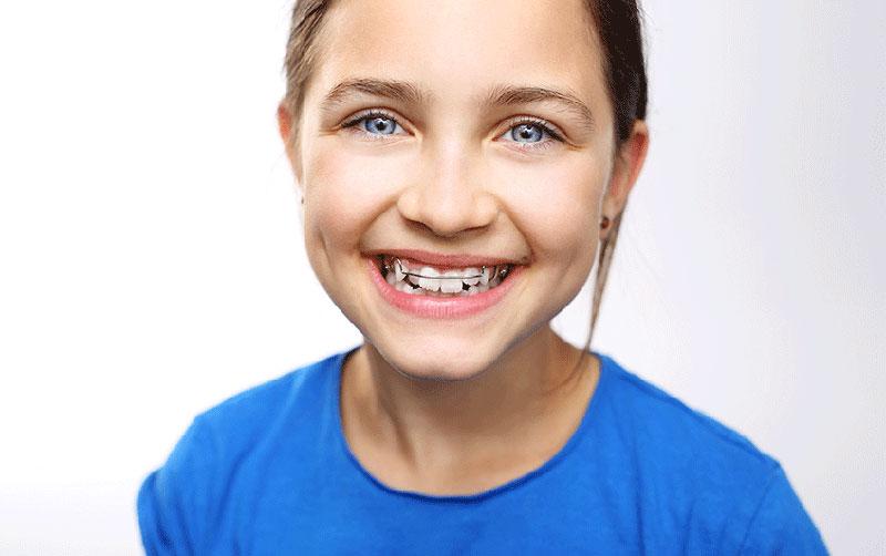 Invisalign Zaragoza - Apiñamiento dental