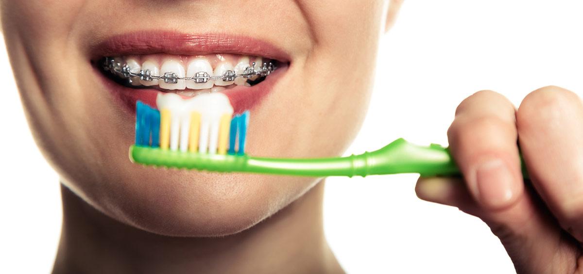 Limpieza bucal con ortodoncia