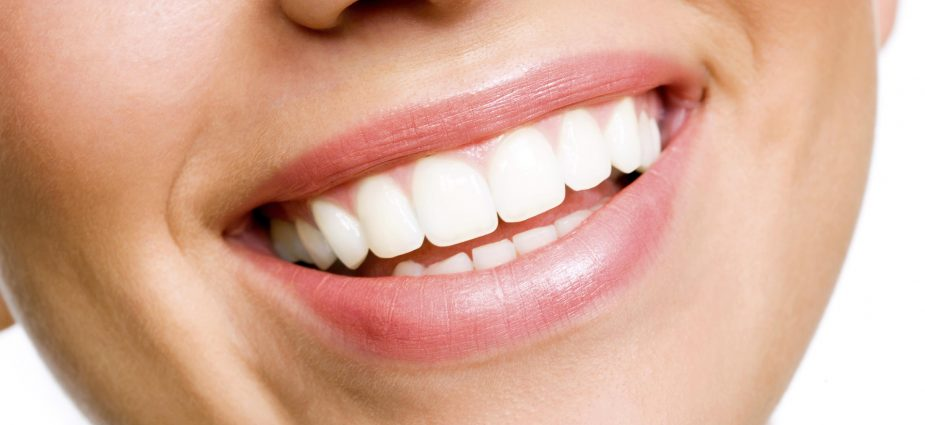 Dentista Zaragoza - Como hacer un blanqueamiento dental